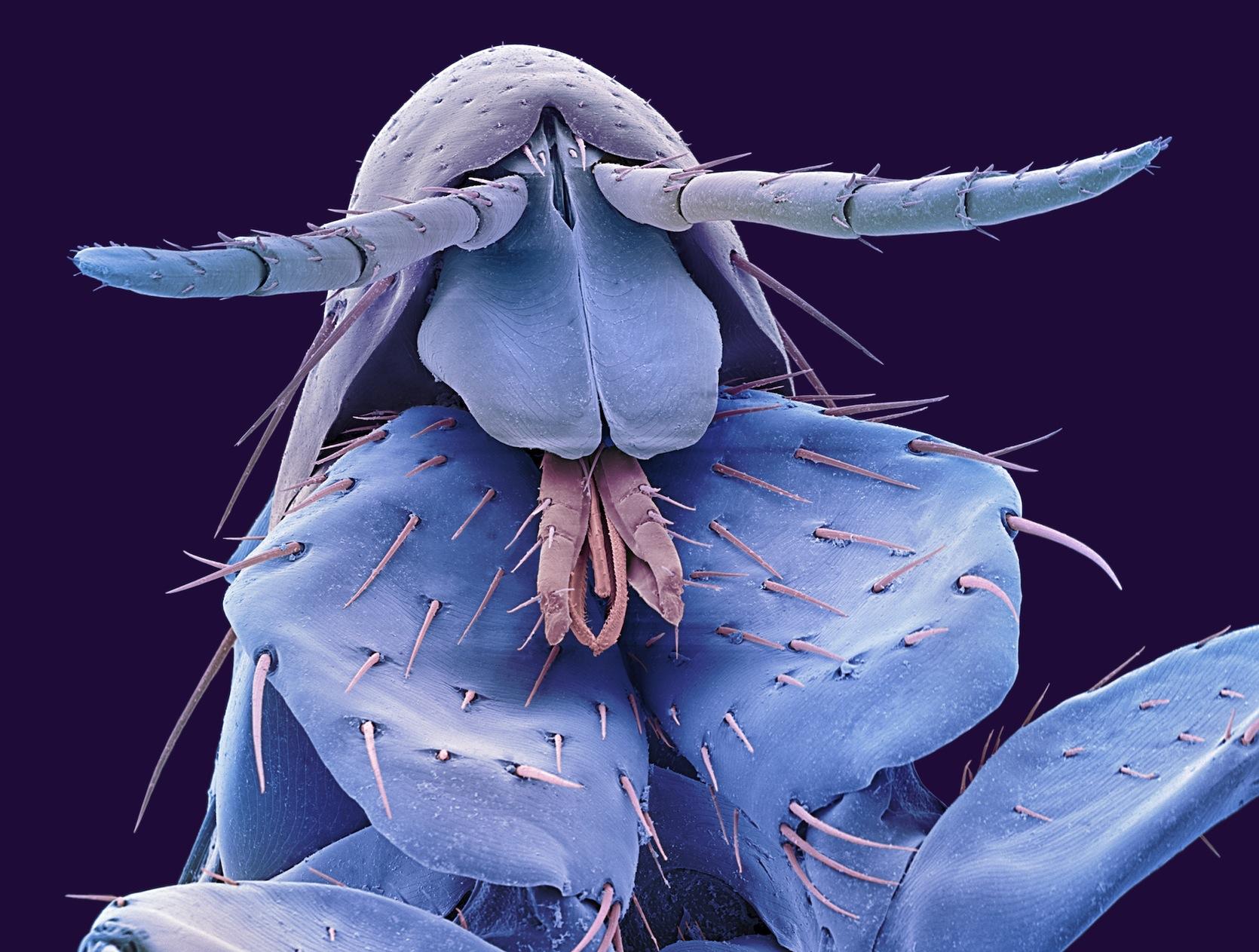 pulci-al-microscopio-elettronico